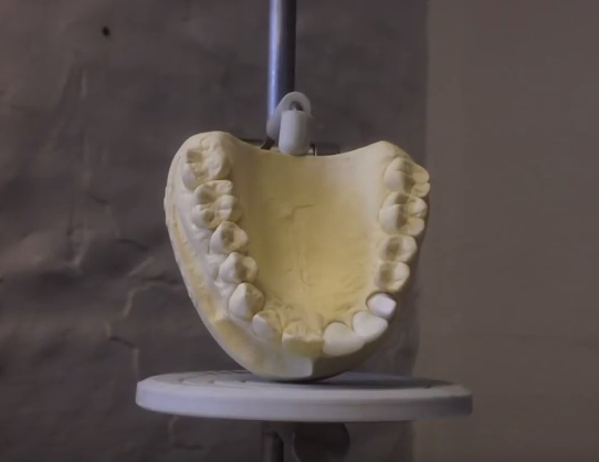 3D Printed Teeth Against Oral Bacteria