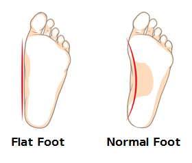 Flat Foot and Normal Foot
