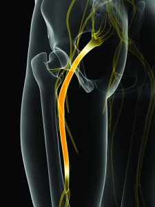3d rendered illustration of the sciatic nerve