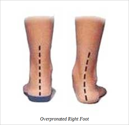 overpronated-right-foot