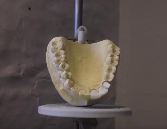 3D Printed Teeth Against Oral Bacteria