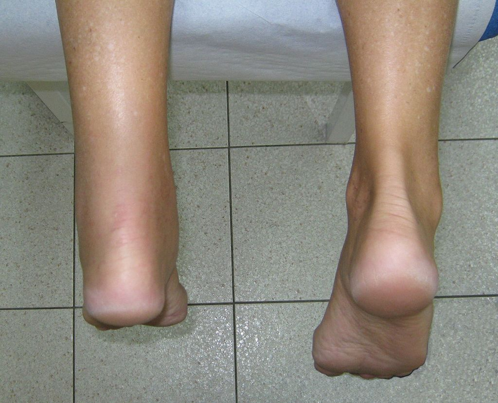 How Remedial Massage Helps Runners with Achilles Tendonitis